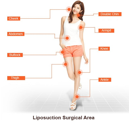 liposuction-365mc-image-2