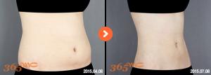 abdominal liposuction 3