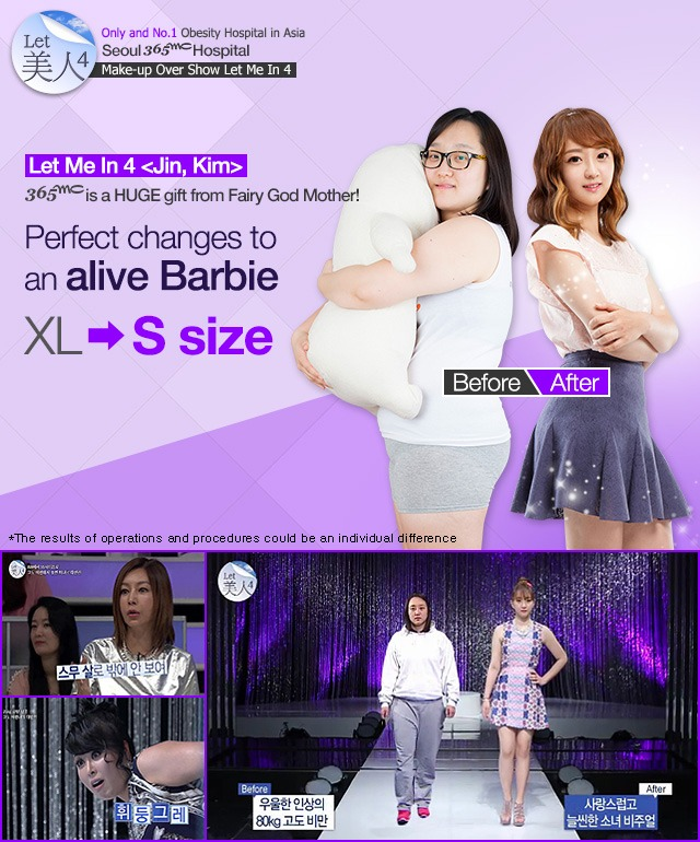 B-1 Liposuction image 1