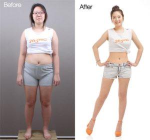 korean-plastic-surgery-clinic-2