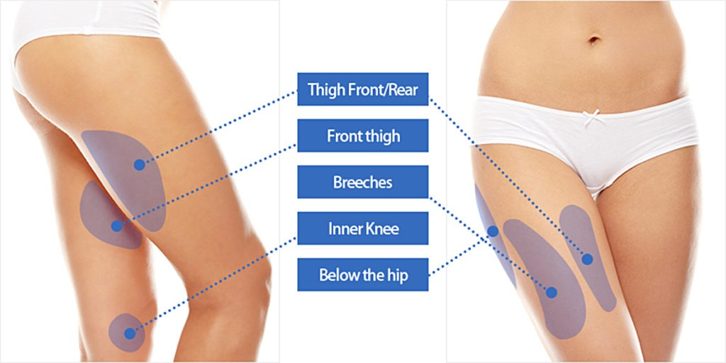 thigh_liposuction