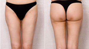Thigh-Liposuction-korea-2-300x165