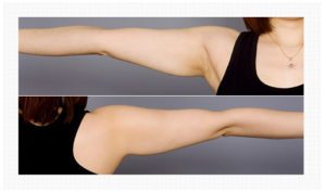 Arm Liposuction korea