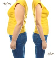 Tummy-Tuck-before-after