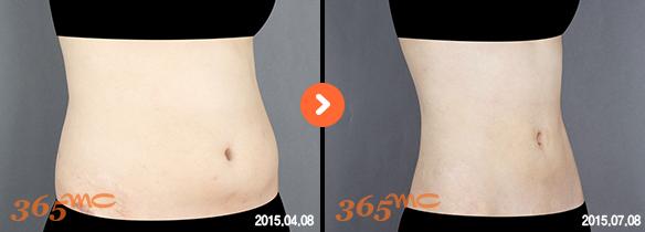 Korean Liposuction Before After in Korea - 365mc Hospital