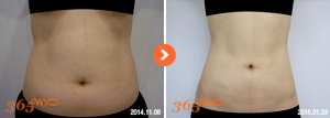 abdominal liposuction 1