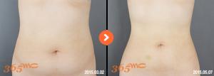 abdominal liposuction 2