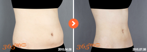 abdominal liposuction 3