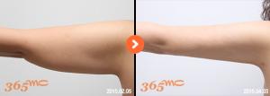 arm liposuction 1